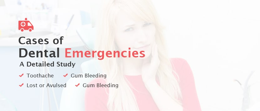 Cases of Dental Emergencies – Detailed Study