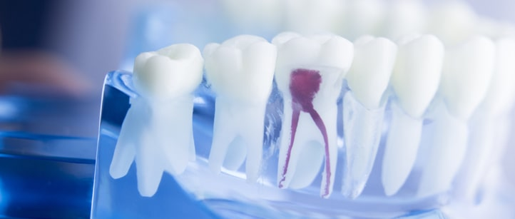 tooth decay treatments