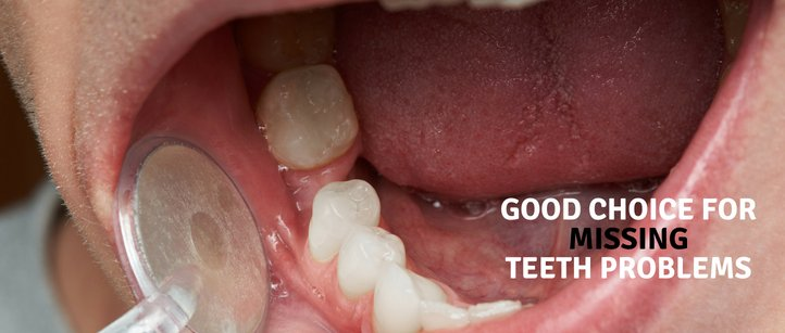 Good Choice for Missing Teeth Problems